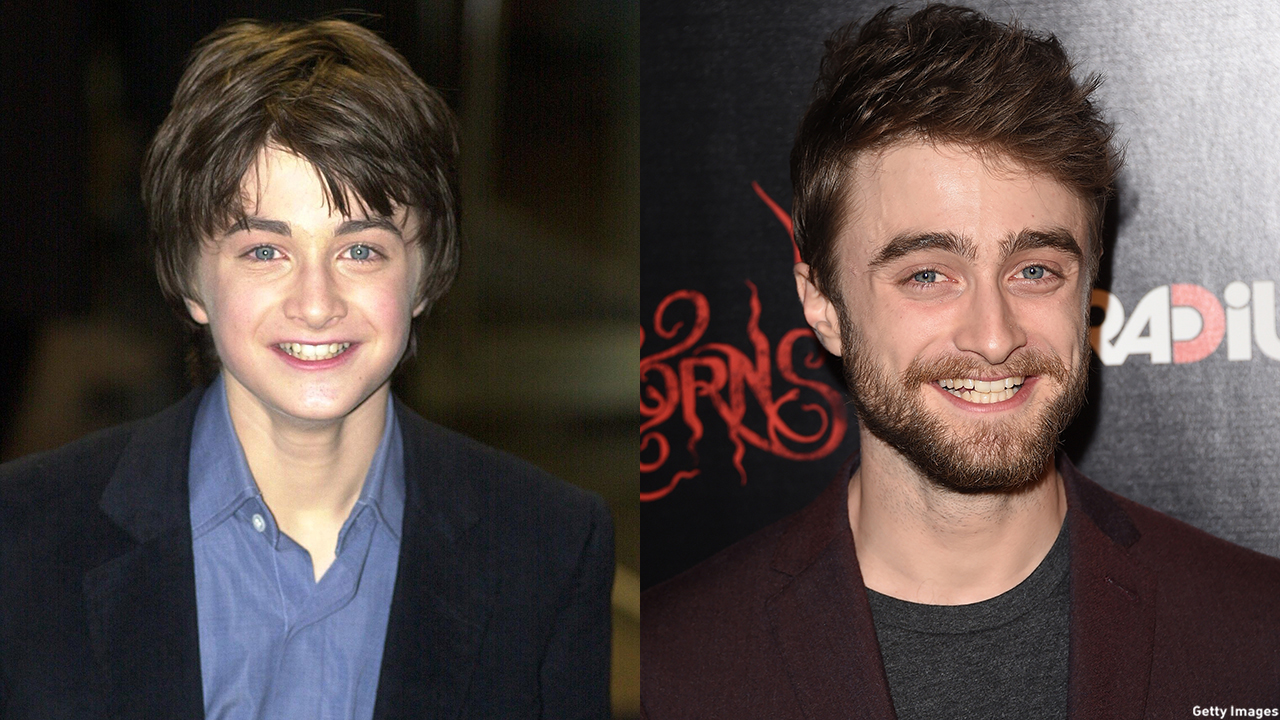 Daniel Radcliffe in 2001 (left) and 2015 (right). (Getty Images)